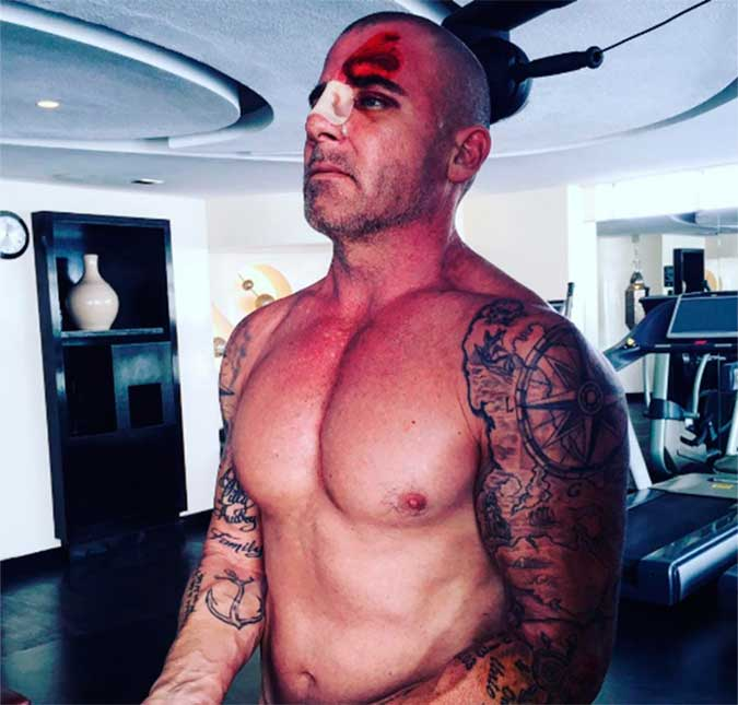 dominic purcell unfall
