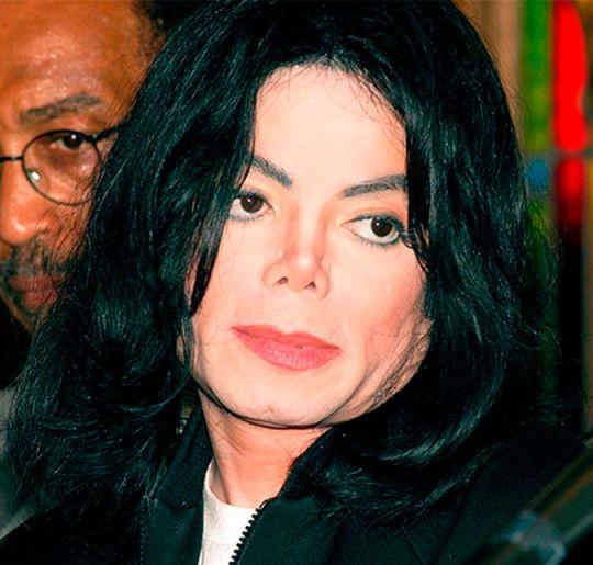 Médico de Michael Jackson faz revelações chocantes sobre o cantor, saiba tudo!