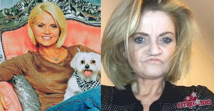 Atriz que teve rosto corroído por cocaína passa por primeira cirurgia de  reparação - Estrelando